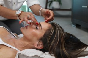 5 tips when you consider botox